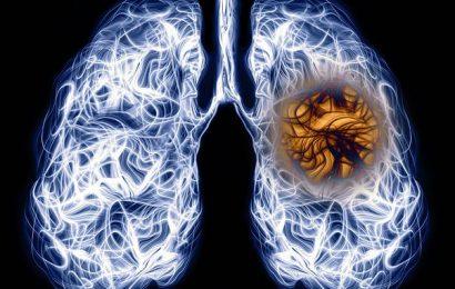 Even mild covid-19 symptoms can lead to long-term organ damage