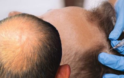 Hair loss treatment: Exhausted all options? This procedure may just do the trick